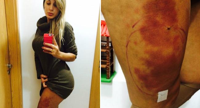 Nas redes sociais, Andressa exibiu edema nas pernas, em decorrência da aplicação do hidrogel