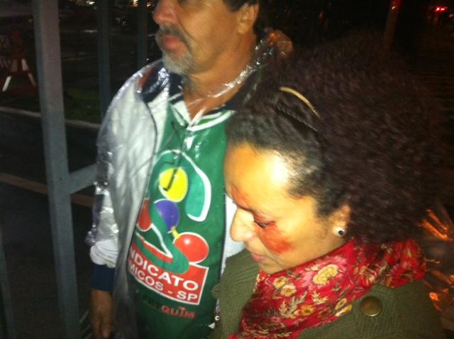 Severina Ramos do Amaral foi atingida no rosto por uma bomba de efeito moral na Assembleia Legislativa
