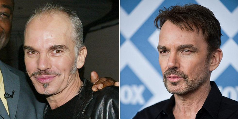 Ok, Billy Bob Thornton (em 2002 e 2014) fez implante, e pintou os cabelos para parecer bem mais jovem. Aprovado!