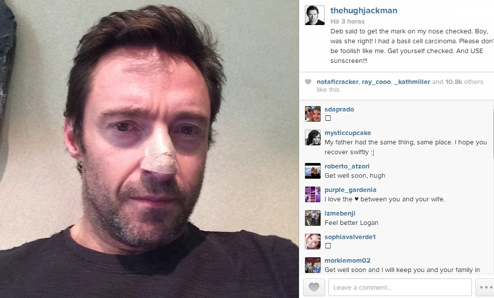 Hugh Jackman - Câncer de Pele