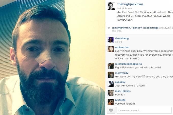 Hugh Jackman – Wolwerine – Câncer de Pele – Instagram