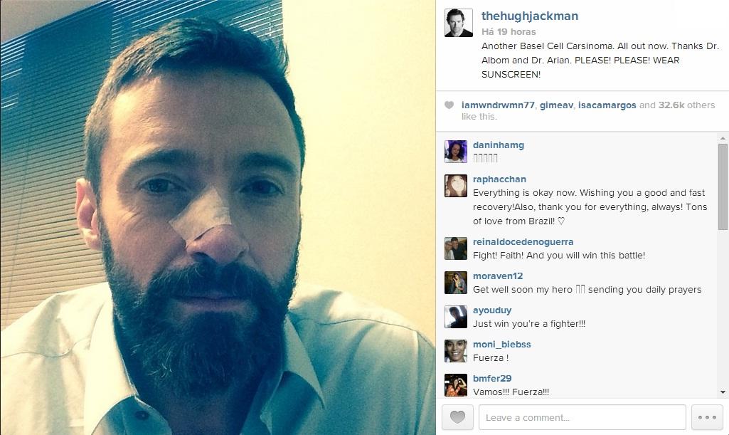Hugh Jackman - Wolwerine - Câncer de Pele - Instagram