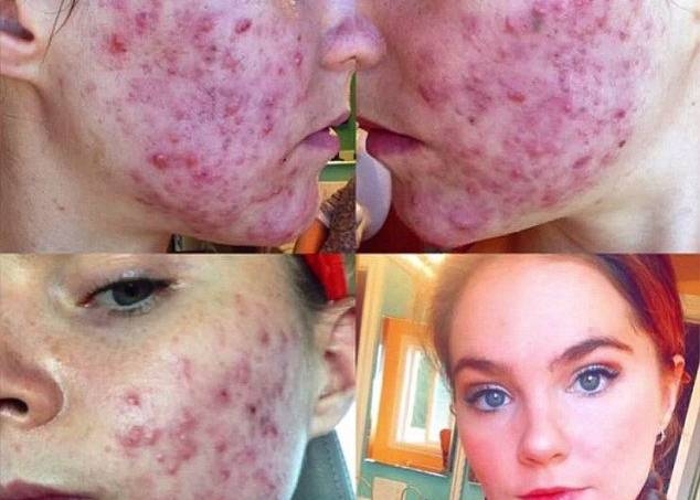 irmas-acne-4