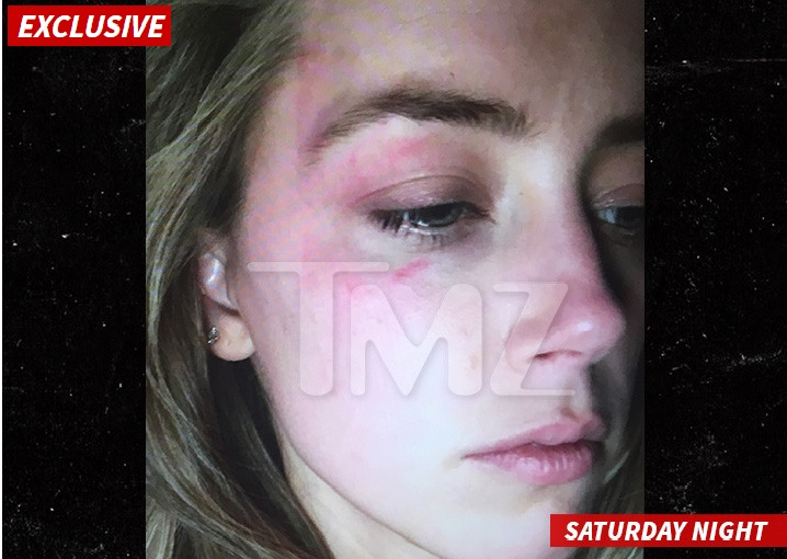 Amber Heard: agressão com celular (foto: reprodução/TMZ)