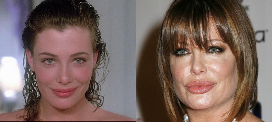 """Para quem já foi a """"mulher nota mil"""" e """"a dama de vermelho"""", Kelly LeBrock exagerou no Botox"""