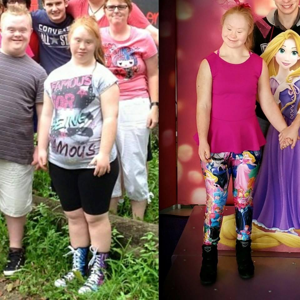 O antes e depois de Maddy: até o sorriso é muito mais bonito, não é?
