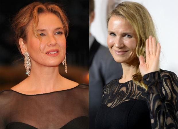 Antes e depois: Renée está irreconhecível