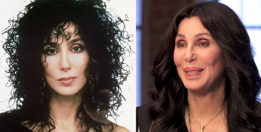 Cher é uma das rainhas das plásticas, mas até as divas erram a mão