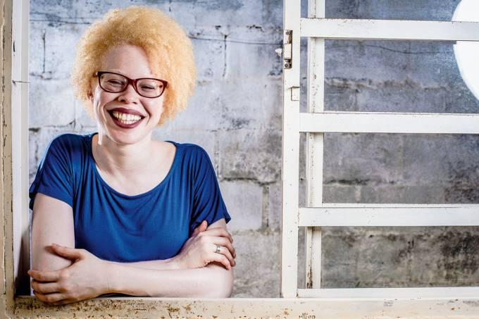 rafaela materia albinos