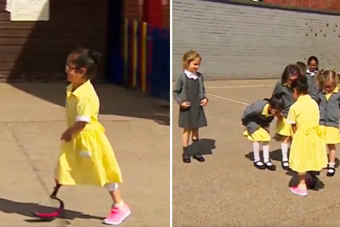 video-reacao-criancas-colega-perna-prostetica