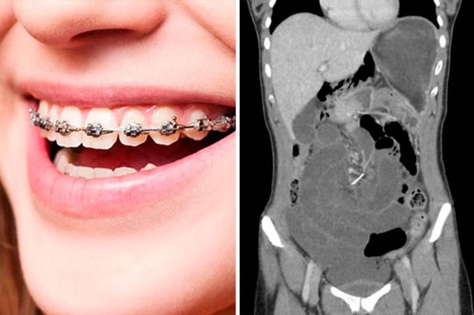 aparelho-10-anos-intestino-01