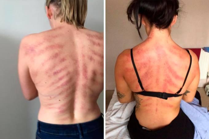 marcas-costas-tratamento-massoterapeuta-01