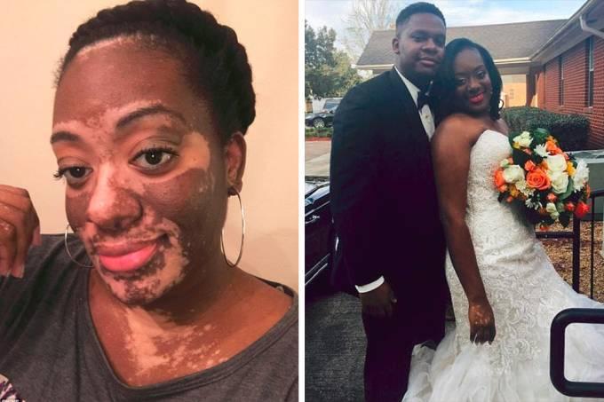noiva-casamento-vitiligo-01