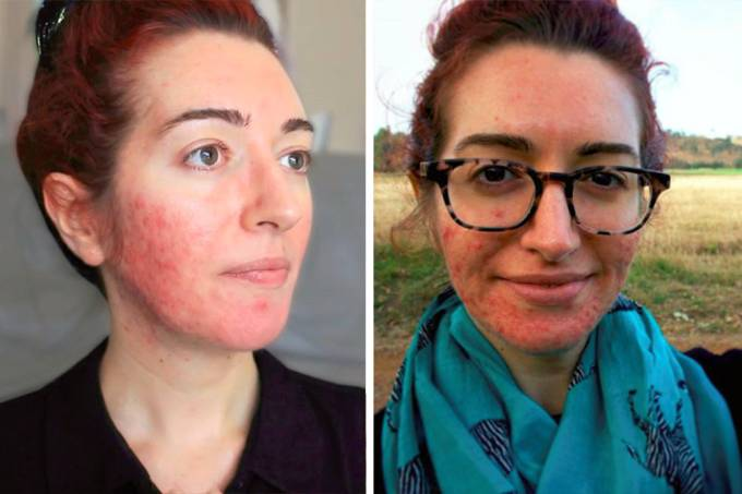 mulher-acne-15-anos-01