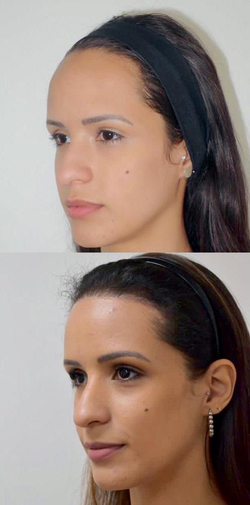 antes (acima) e depois (abaixo) de cirurgia de redução de testa na Renata Marques
