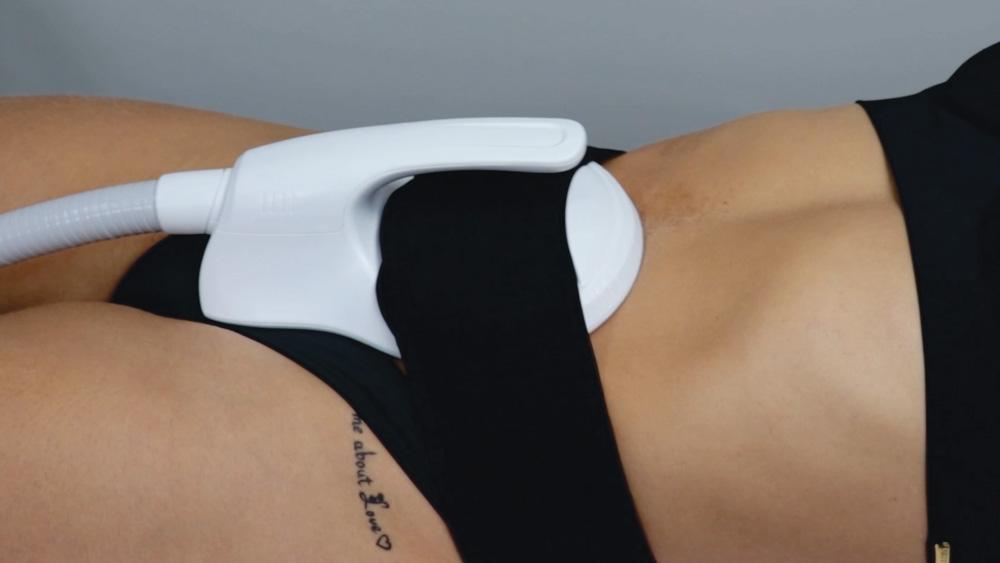 imagem da cintura de mulher com o equipamento t sculptor acoplado